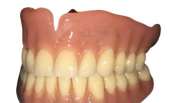 Injection-Moulded Denture