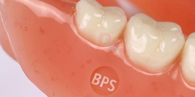 B.P.S. Complete Dentures