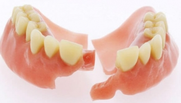 Dental Repairs and Tooth Additions