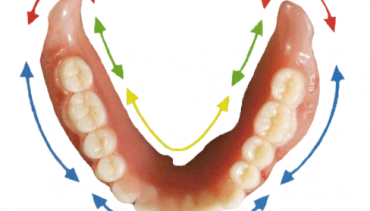 Lower Suction Dentures