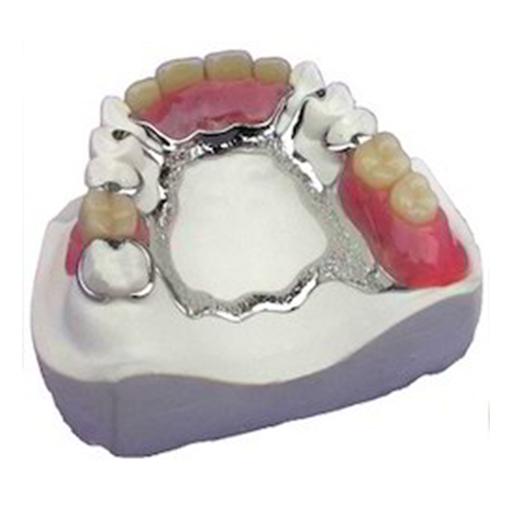 Cobalt Chrome Denture