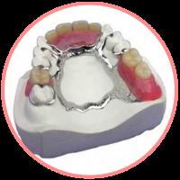 COmplete denture (2)
