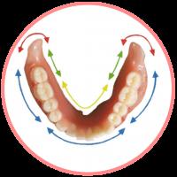 COmplete denture (3)